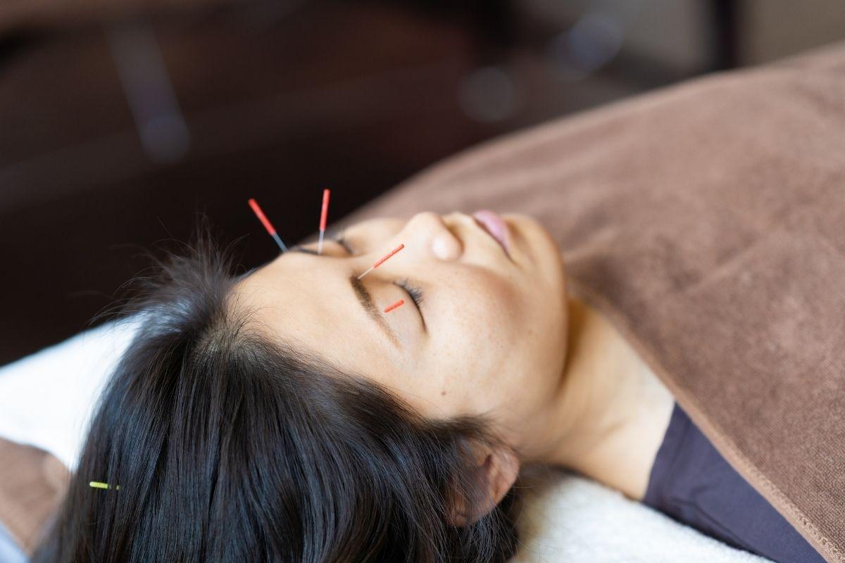鍼灸の効果